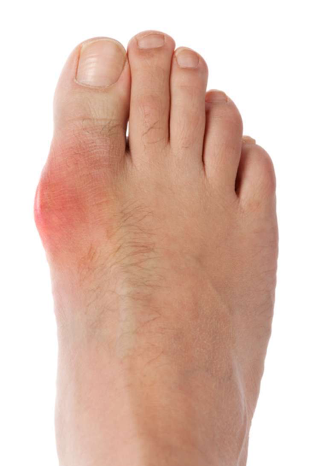Everything You Need To Know About Gout!